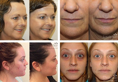Skin Specialists - Before and After Photos